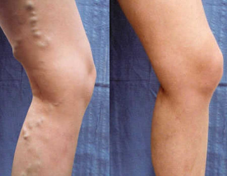 علاج دوالي الساقين عند النساء
