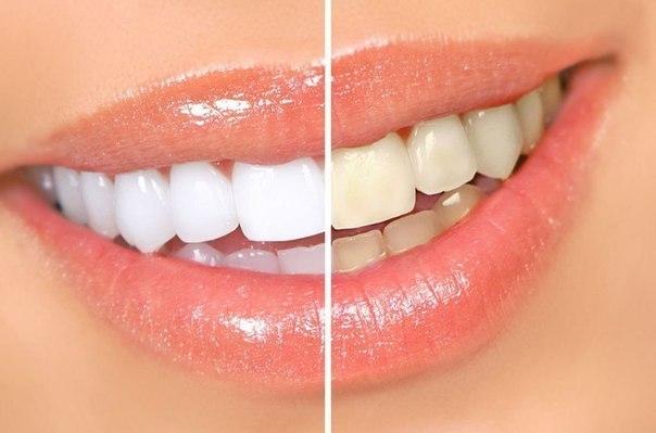 التخلص من إصفرار الأسنان بطرق طبيعية