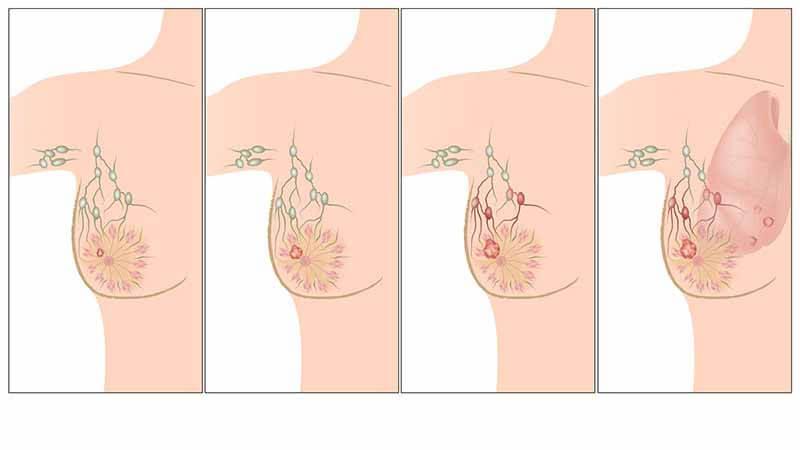 أعراض تشير إلى الإصابة بسرطان الثدي