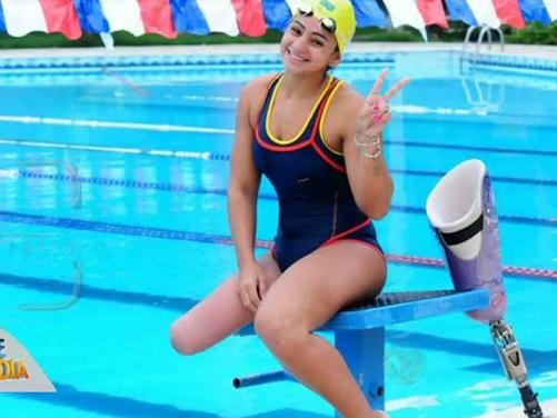 """"""" كاميلي رودريغنز """" .. بطلة رياضية وعارضة أزياء بساق واحدة"""