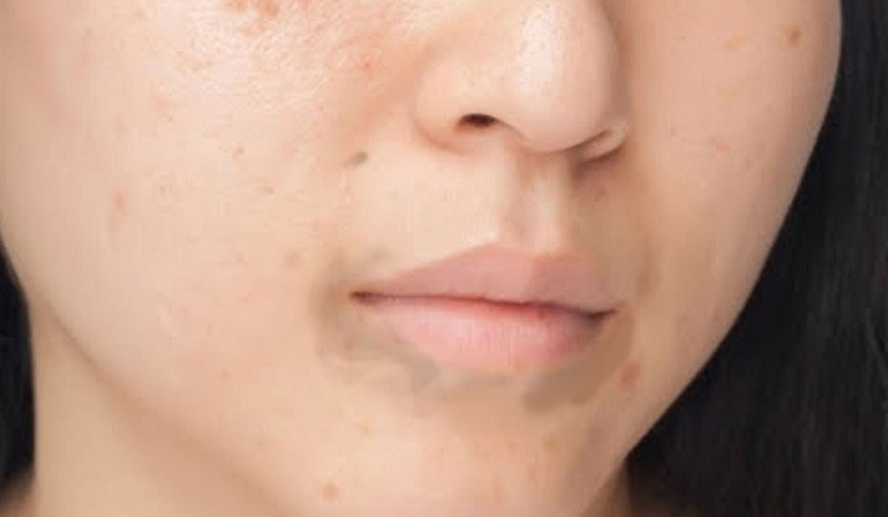 10 طرق للتخلص من الاسمرار حول الفم