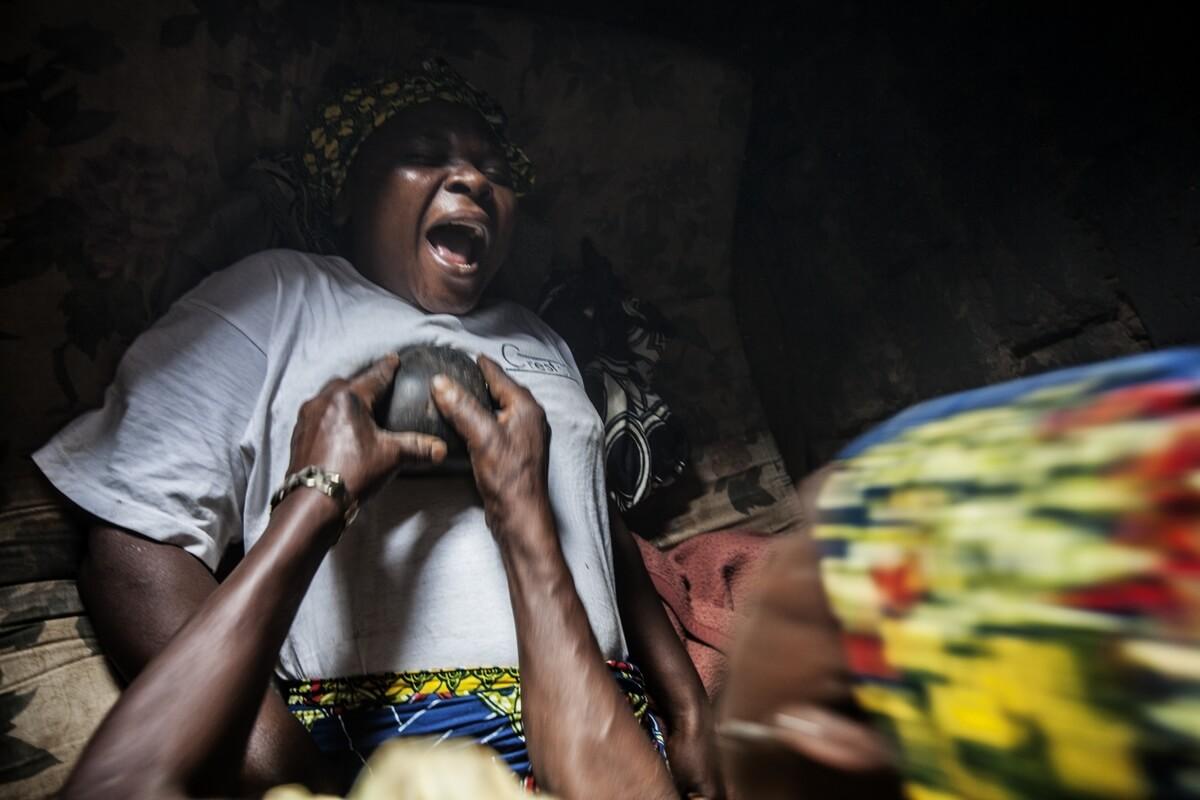 """""""كي الثدي"""" في الكاميرون..عقاب للأنوثة بحجة الحماية"""