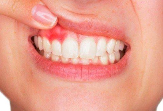 7 مكونات طبيعية تعالج التهاب اللثة