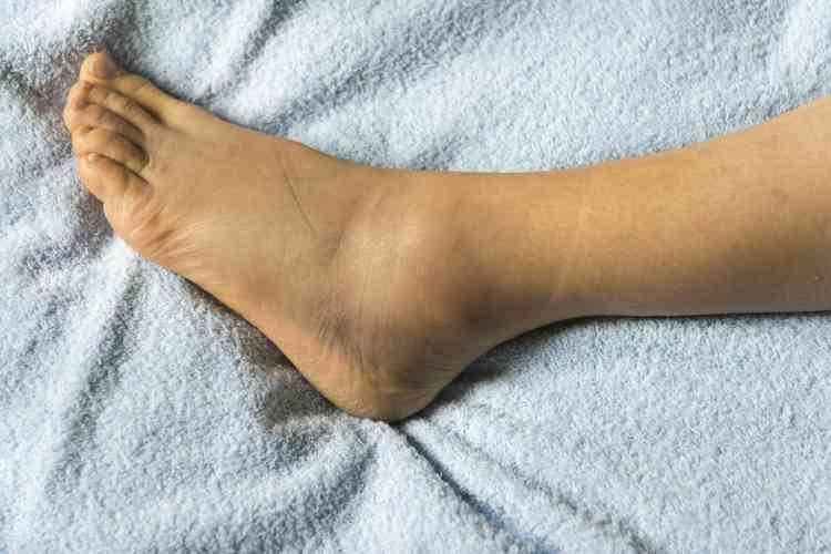 أسباب تورم القدمين عند كبار السن وكيفية العلاج