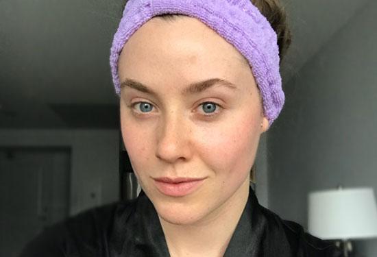 ماسكات طبيعية للتخلص من الرؤوس البيضاء في الوجه