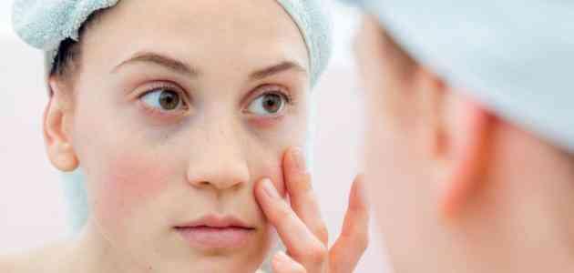 أسباب تورم الوجه وكيفية علاجه بخطوات منزلية بسيطة احكي