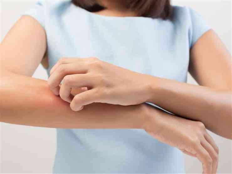 أسباب حساسية الجسم المفاجئة وعلاجها