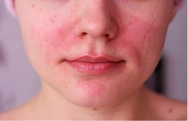 أهم طرق علاج اكزيما الوجه وكيفية الوقاية منها