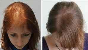العلاقة بين المينوكسيديل وزراعة الشعر