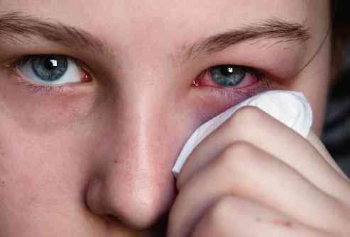 طرق علاج حساسية العين وكيف يمكنك تجنب أعراضها