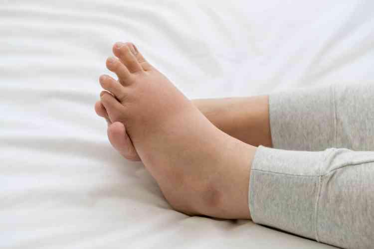 علاج تورم القدمين لمريض السكر.. اتبعوا هذه النصائح