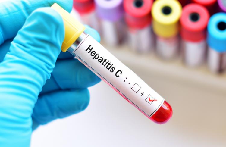 علاج فيروس سي وكل ما يهمك معرفته عنه