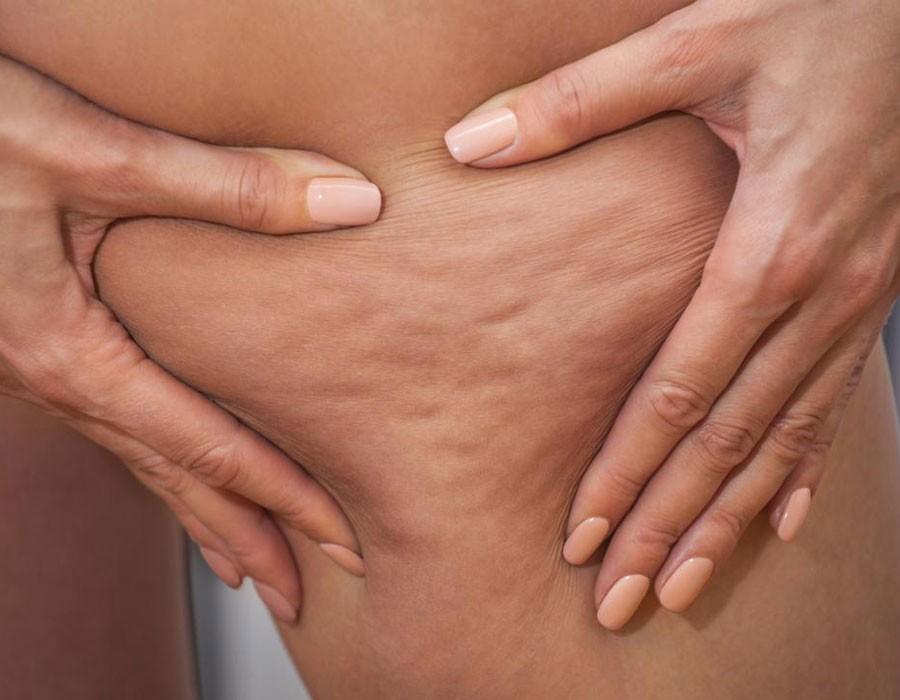 8 أسباب رئيسية تؤدي لظهور السيلوليت