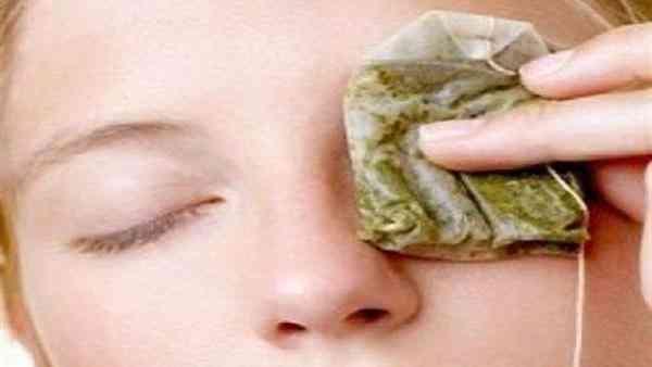 علاج انتفاخات العينين