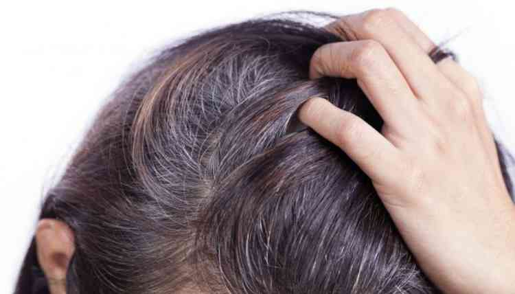 أسباب الشعر الأبيض