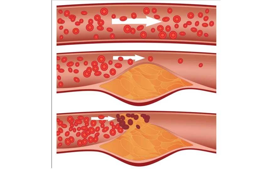 ماهو ارتفاع الكوليسترول في الدم؟
