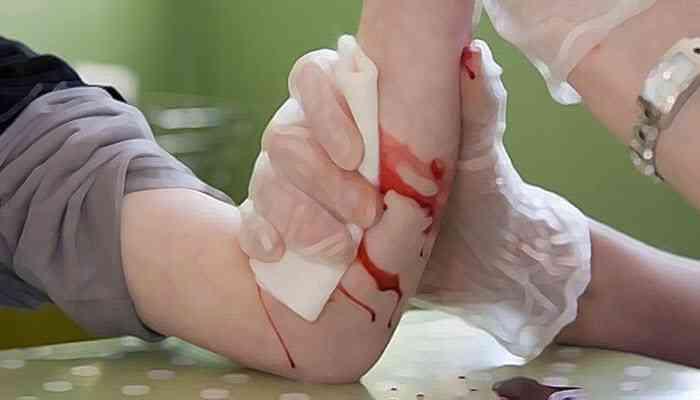 الإسعافات الأولية للجروح