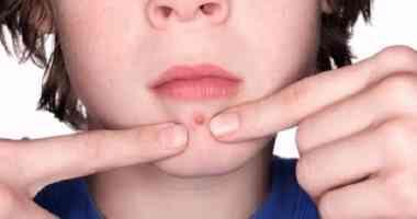 أسباب ظهور الدمامل في الوجه