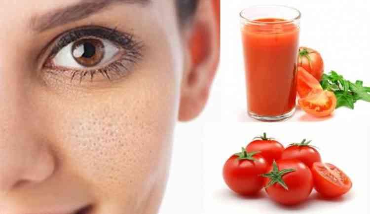 فوائد الطماطم لحب الشباب